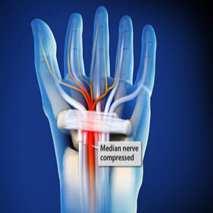Treating Carpal tunnel syndrome in Plano, Frisco, McKinney and Allen