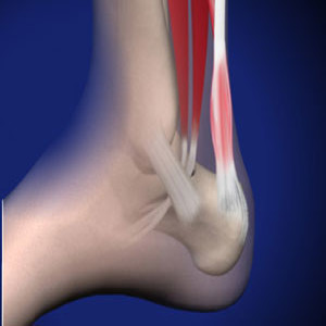 Treating Achilles Tendon Injury in Plano, Frisco, McKinney and Allen