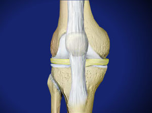 ACL Reconstruction in Plano, Frisco, McKinney and Allen