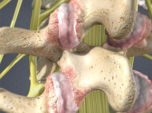 Treating Facet Joint Syndrome in Plano, Frisco, McKinney and Allen