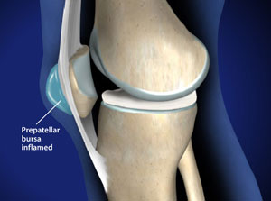 Treating Kneecap Bursitis in Plano, Frisco, McKinney and Allen
