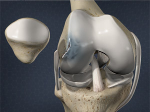 Treating Osteochondritis Dissecans of the Knee in Plano, Frisco, McKinney and Allen