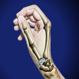 Treating Basal Joint Oseoarthritis In Plano Frisco