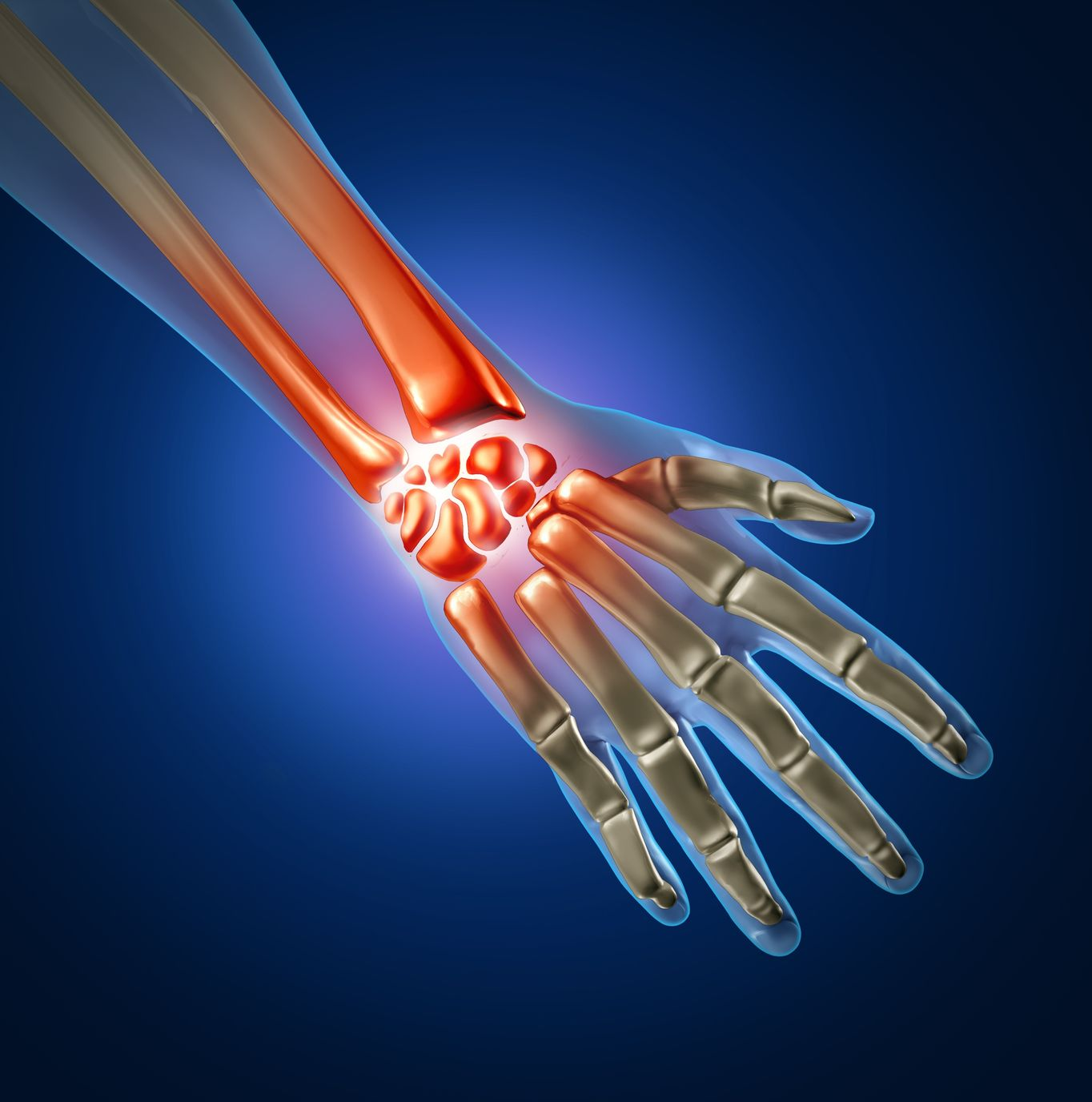 Orthopedic Hand & Wrist Surgery in Plano, Frisco, McKinney and Allen