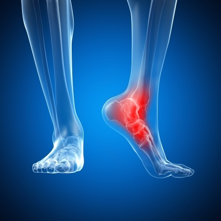 Orthopedic Foot & Ankle Surgery in Plano, Frisco, McKinney and Allen