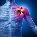 Shoulder doctors in Plano, Frisco, McKinney and Allen
