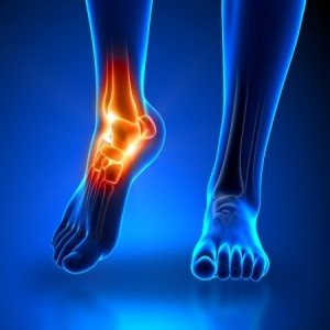 Foot & Ankle doctors in Plano, Frisco, McKinney and Allen