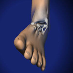 Treating Ankle Sprains in Plano, Frisco, McKinney and Allen