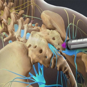 Caudal Epidural Steroid Injection in Plano, Frisco, McKinney and Allen