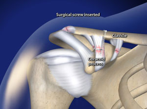 Arthroscopic Acromioclavicular (AC) Joint Separation Repair in Plano, Frisco, McKinney and Allen