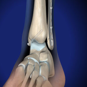 Ankle Fracture & Surgery in Plano, Frisco, McKinney and Allen
