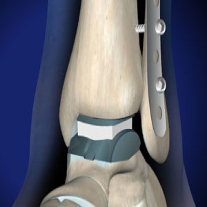 Ankle Replacement in Plano, Frisco, McKinney and Allen