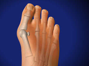 Treating Bunions in Plano, Frisco, McKinney and Allen