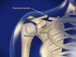 Treating Fracture of the Collarbone in Plano, Frisco, McKinney and Allen