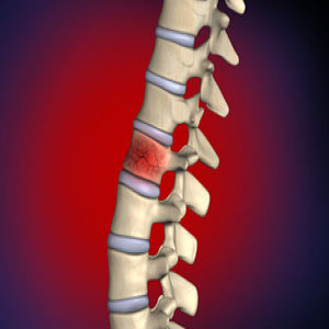 Treating Compression fractures of the spine in Plano, Frisco, McKinney and Allen