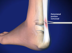 Debridement Achilles Tendon in Plano, Frisco, McKinney and Allen
