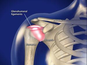 Treating Frozen shoulder in Plano, Frisco, McKinney and Allen
