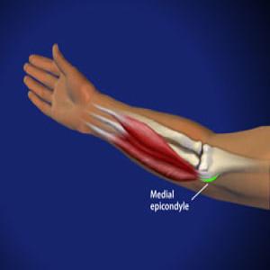 Treating golfer's elbow in Plano, Frisco, McKinney and Allen
