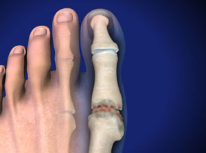 Treating Hallux Rigidus in Plano, Frisco, McKinney and Allen