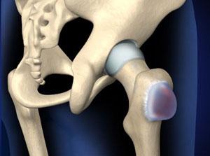 Treating Hip Bursitis in Plano, Frisco, McKinney and Allen