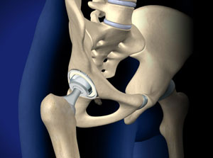 Total Hip Replacement Anterior Approach in Plano, Frisco, McKinney and Allen