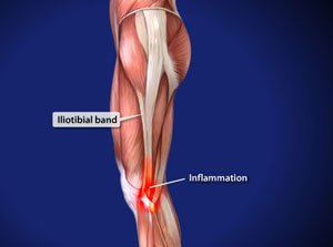 Treating Iliotibial Band Syndrome in Plano, Frisco, McKinney and Allen