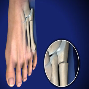 Treating Jones Fractures in Plano, Frisco, McKinney and Allen