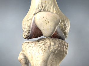Treating Osteoarthritis of the Knee Disease in Plano, Frisco, McKinney and Allen