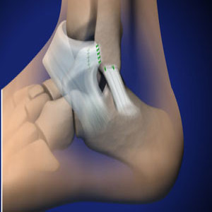 Lateral Ankle Ligament Reconstruction in Plano, Frisco, McKinney and Allen