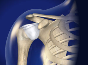 Treating Loose Shoulder in Plano, Frisco, McKinney and Allen