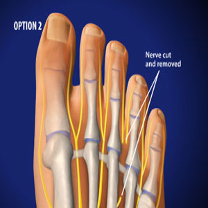 Excision of Morton's Neuromas in Plano, Frisco, McKinney and Allen