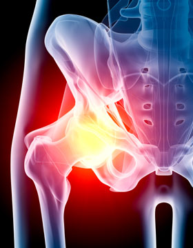 Treating Osteoarthritis of the Hip in Plano, Frisco, McKinney and Allen