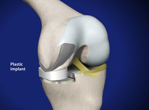 Partial Knee Replacement in Plano, Frisco, McKinney and Allen