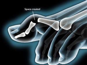 Hammertoe Correction wrist in Plano, Frisco, McKinney and Allen