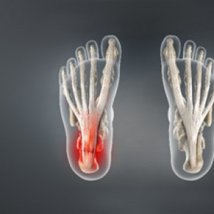 Treating Plantar fasciitis in Plano, Frisco, McKinney and Allen