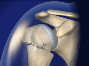 ORIF Surgery for Proximal Humerus Fracture in Plano, Frisco, McKinney and Allen