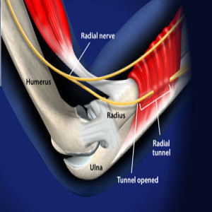 Treating Radial Tunnel Syndrome in Plano, Frisco, McKinney and Allen