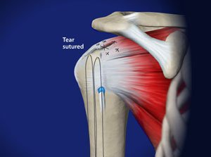 Arthroscopic Rotator Cuff Repair in Plano, Frisco, McKinney and Allen