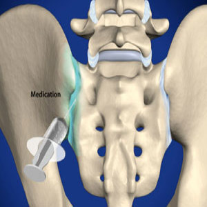Sacroiliac Joint Steroid Injection in Plano, Frisco, McKinney and Allen