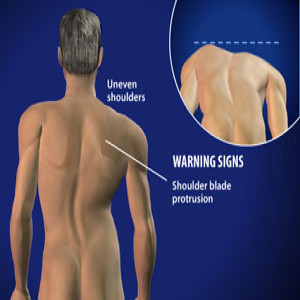 Treating Scolosis in Plano, Frisco, McKinney and Allen