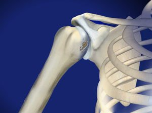 Treating Shoulder Arthritis in Plano, Frisco, McKinney and Allen
