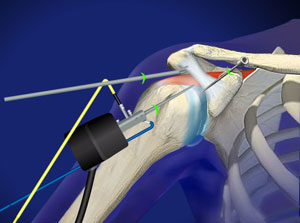 Shoulder Impingement Surgery in Plano, Frisco, McKinney and Allen