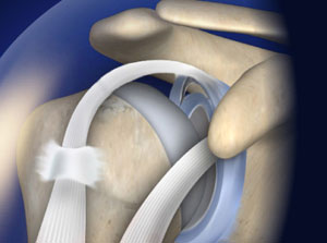 Treating SLAP Tear in Plano, Frisco, McKinney and Allen