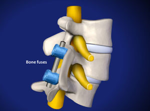 Spinal fusion in Plano, Frisco, McKinney and Allen