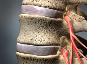 Treating Spinal Stenosis in Plano, Frisco, McKinney and Allen