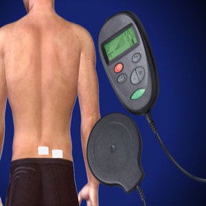 Spinal Cord Stimulator Implant in Plano, Frisco, McKinney and Allen