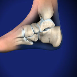 Treating Fracture of the Heel Bone in Plano, Frisco, McKinney and Allen
