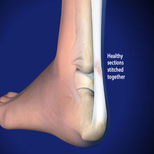 Treating Achilles Tendon Rupture in Plano, Frisco, McKinney and Allen