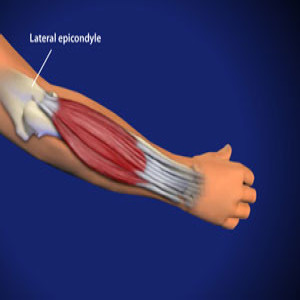 Treating Tennis Elbow in Plano, Frisco, McKinney and Allen