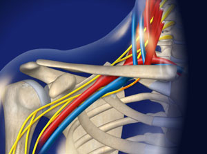 Treating Thoracic Outlet Syndrome in Plano, Frisco, McKinney and Allen